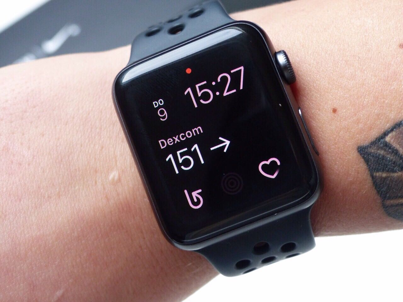Apple Watch und Dexcom